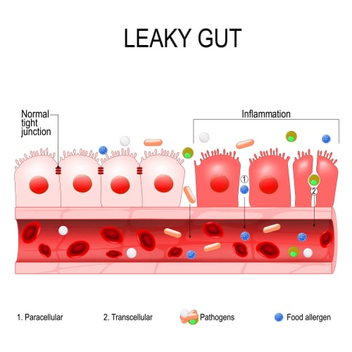 Illustration of a leaky gut